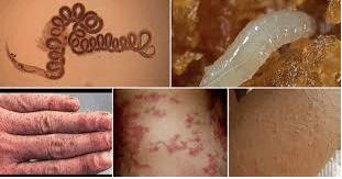 10 Human Parasites >> Human Parasites Infections Symptoms Causes Western