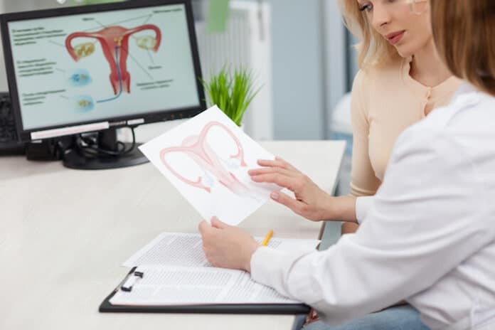 Experienced female gynecologist is explaining to a woman the concepts of her disease. She is holding and showing a picture of uterus. Young lady is looking at it seriously